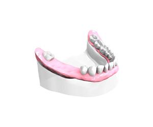 Examen-pre-implantaire-Dentiste