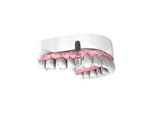 Mise-en-place-de-l-implant-dentaire