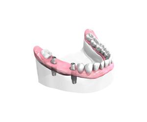 Mise-en-place-des-implants-dentaires-