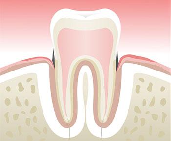 Parodontologie-Stade-2
