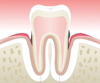 Parodontologie-Stade-3