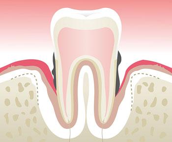Parodontologie-Stade-4
