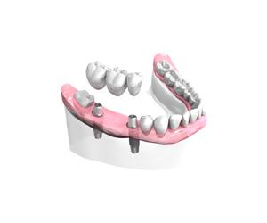 Pose-d-un-bridge-ceramique-sur-implants